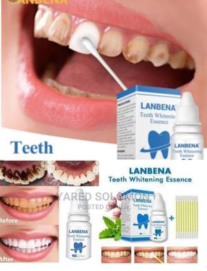 የጥርስ ማንጫ Teeth Whitening | Bath & Body for sale in Addis Ababa, Bole