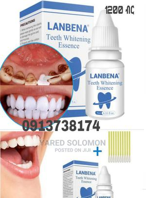 Teeth Whitening | Tobacco Accessories for sale in Addis Ababa, Bole
