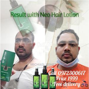 Neo Hair Lotion | Hair Beauty for sale in Addis Ababa, Bole